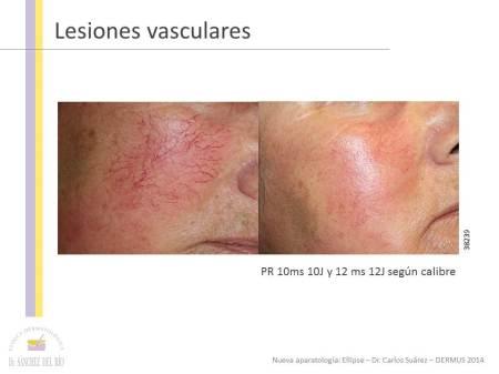 Tratamiento_lesiones_vasculares_Ellipse_Dr_Suarez